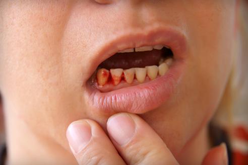 merevedés és rossz fogak)